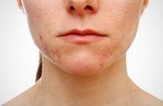Герпес на обличчі: лікування, причини виникнення, клінічні симптоми