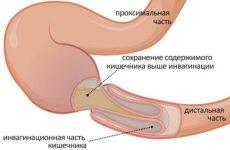 Болить живіт нижче пупка посередині, причини болю по центру у жінок, чоловіків