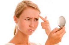 Гнійні прищі на обличчі: причини, лікування, як позбавитися від гнійних прищів швидко