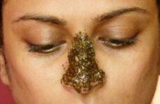 Чорні крапки на носі (комедони): причини, лікування, як позбавитися, засіб від закритих і відкритих комедонов