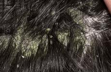 Методи лікування себореї шкіри голови в домашніх умовах