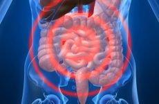 Антибіотики і причини розвитку дисбактеріозу після їх застосування