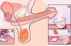 В'язкість сперми причини визначення лікування рекомендації