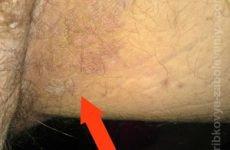 Чим лікувати грибок в паху: лікування пахового грибка у чоловіків і жінок
