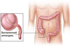 Основні причини формування спайок після операції на апендицит