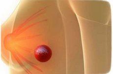 Ліпома грудної молочної залози у жінок і чоловіків: причини, ознаки і лікування жировика