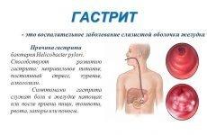 Ознаки, симптоми й лікування гастриту