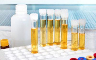 Бакпосів сечі — призначення аналізу та збір біоматеріалу