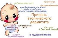 Дитячий атопічний дерматит: причини і симптоми у дитини, лікування алергії у немовляти за Комаровським