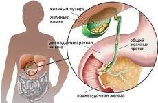 Основні причини та характерні симптоми калькульозного холециститу