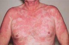 Туберкульоз шкіри: різновиди та перші ознаки та симптоми , правила лікування хвороби