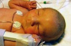 Білірубін у новонароджених: який повинен бути рівень в нормі, лікування
