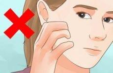 Сверблять і сверблять прищі на обличчі: причини і лікування