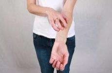 Шкірний свербіж: причини, діагностика, лікування, профілактика