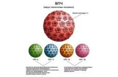 Як лікувати Вірус папіломи людини 16 і 18 типу і як не допустити зараження