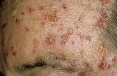 Сонячний кератоз: симптоми захворювання, профілактика і лікування актинического кератозу