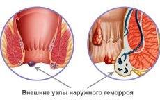 Як правильно використовувати фракцію №2 для лікування при геморої