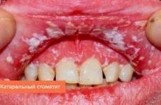 Білі плями на губах: причини появи точок і пухирців, як позбутися проблеми