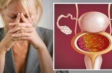 Цистит при клімаксі | Симптоми і лікування циститу при менопаузі
