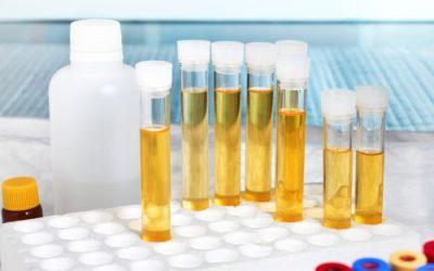 Лейкоцити в сечі у дитини: норма і підвищені показники