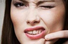 Білі прищики на обличчі (міліуми, вугри): причини, лікування, як позбутися (прибрати) від білих прищів швидко
