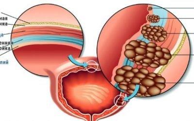 Переходноклеточный рак сечового міхура: прогноз високодиференційовані раку переходноклеточного