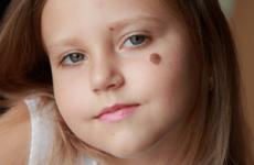 Коли у дитини може з'явитися родимка: симптоми і лікування
