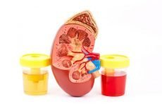 Цистит з кров'ю: причини, ознаки, діагностика, ускладнення