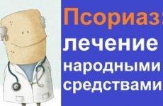 Лікування псоріазу в домашніх умовах народними засобами і традиційними ліками
