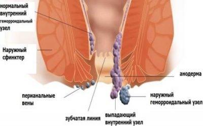 Методика виконання геморроїдектомії за Миллигану Моргану