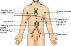 Причини симптоми і способи лікування мезаденіта у дітей і дорослих