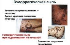 Геморагічний висип на шкірі (висипання) – що робити?
