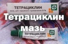 Мазь тетрациклінова: інструкція по застосуванню для очей, від прищів і герпесу на губах, відгуки