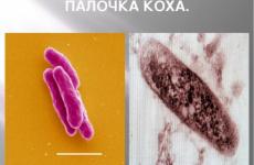 Туберкульоз шкіри: причини та шляхи зараження, симптоми, діагностика