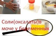 Солі оксалати в сечі при вагітності в невеликих і великих кількостях: що це значить