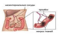 Болить живіт нижче пупка у жінок