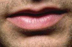 Герпес у чоловіків: генітальний, як виявляється, чим лікувати