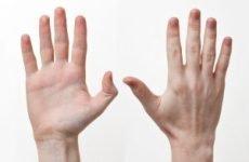 Прищі на пальцях рук: причини, лікування, як позбутися
