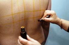 Лікування опіків від йоду