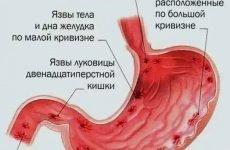 Лікування виразки шлунка медикаментами і народними засобами