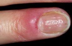 Пароніхія: причини, класифікація, діагностика, лікування