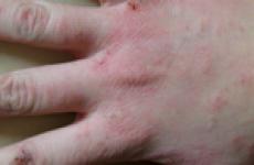 Алергія на руках від миючих засобів: між пальцями, симптоми, причина та лікування