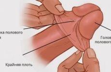 Коротка вуздечка крайньої плоті: лікування, симптоми, причини