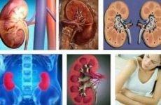 Дифузний гломерулонефрит: гострий і хронічний – що це таке