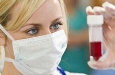Лікування аутогемотерапією: показання, схема проведення, протипоказання та відгуки