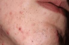 Прищі на лобі: причини, види, лікування та профілактика