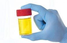 Піурія: причини, класифікація, симптоми, лікування, профілактика