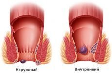 Причини і лікування тромбозу гемороїдального вузла