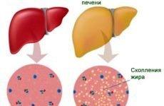 Тяжкість в правому боці: причини і лікування