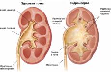 Піелоектазія нирок — що це таке | Розширення балії правої і лівої нирки